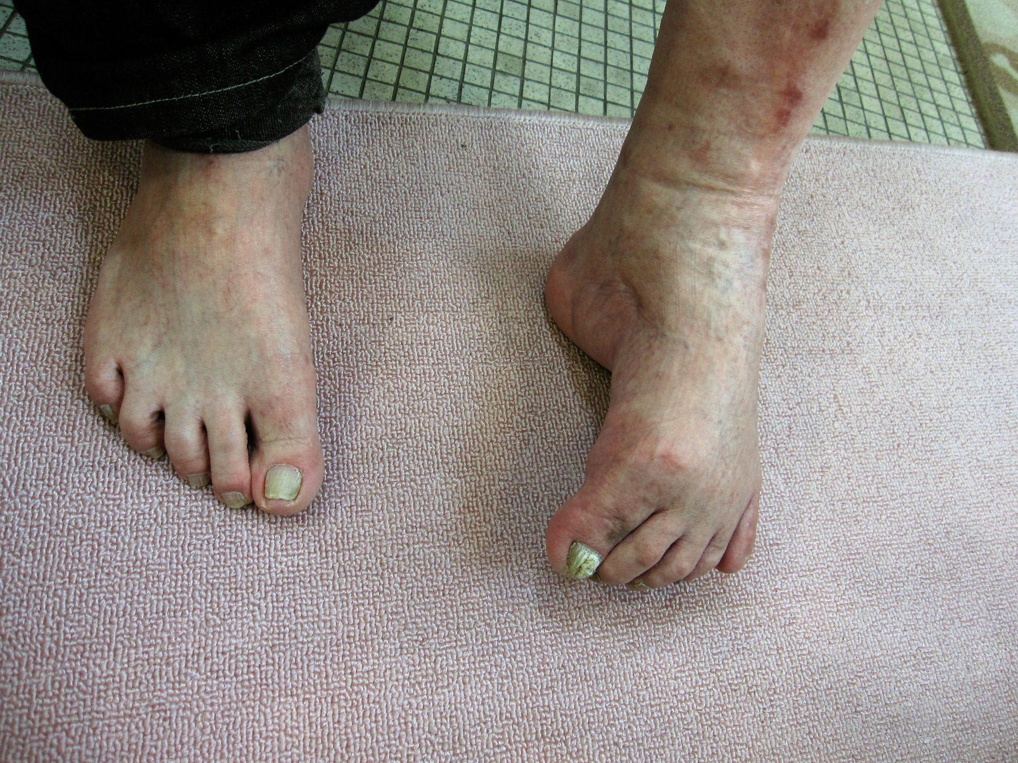 強度の内反足変形の方の足にやさしい靴・オーダーメイドシューズ